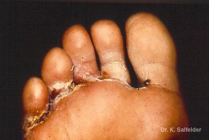 El hongo entre los dedos de los pies el tratamiento por el ácido