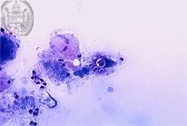 Paracoccidioidomycosis